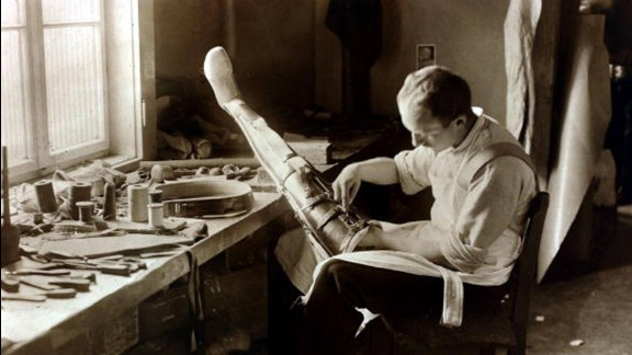 An artificial limb maker at work in Berlin in 1919. Prosthetics were perhaps Berlin's busiest industry after the carnage of the Great War.