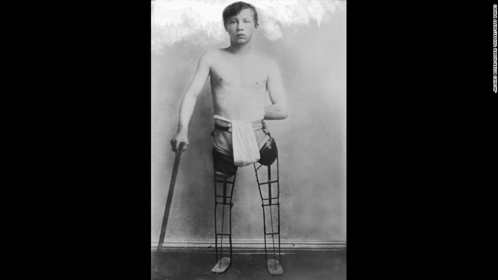 German soldier with simple artificial legs, 1917.