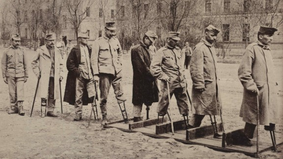 The scale and type of physical injuries endured by soldiers injured in World War One challenged the ingenuity of prosthesis designers, whose work to replace lost body parts would let many return to productive civilian life, a process echoed today with soldiers injured in our recent wars.  Here Austro-Hungarian soldiers practice walking with artificial legs at the First War Hospital, Budapest. See gallery showing the effects of the war.