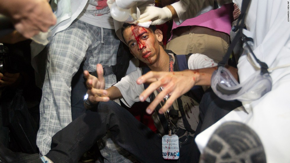 A demonstrator is assisted by paramedics after he was injured by a rock thrown during a march.