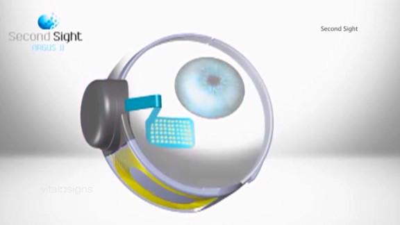 spc vital signs roger pontz bionic eye_00031306.jpg