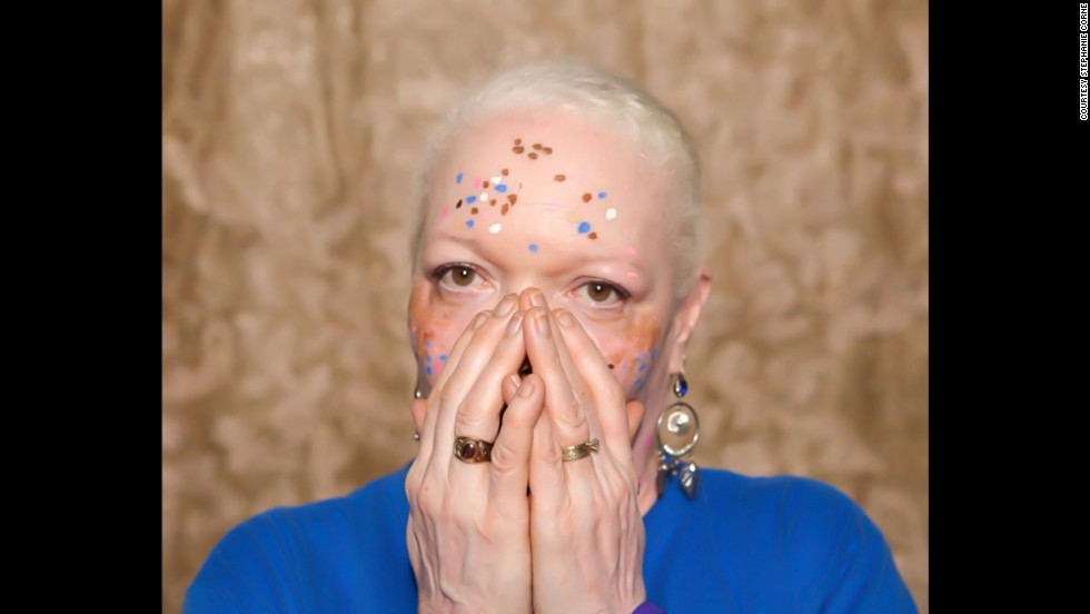 "Vitiligo affects roughly 100 million people worldwide, according to the <a href=""http://vrfoundation.org/"" target=""_blank"">Vitiligo Research Foundation</a>. Pictured, Teri Martin."