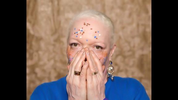 Vitiligo affects roughly 100 million people worldwide, according to the Vitiligo Research Foundation. Pictured, Teri Martin.