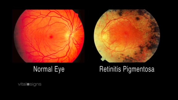 Retinitis pigmentosa causes a slow loss of light-sensitive retinal cells.
