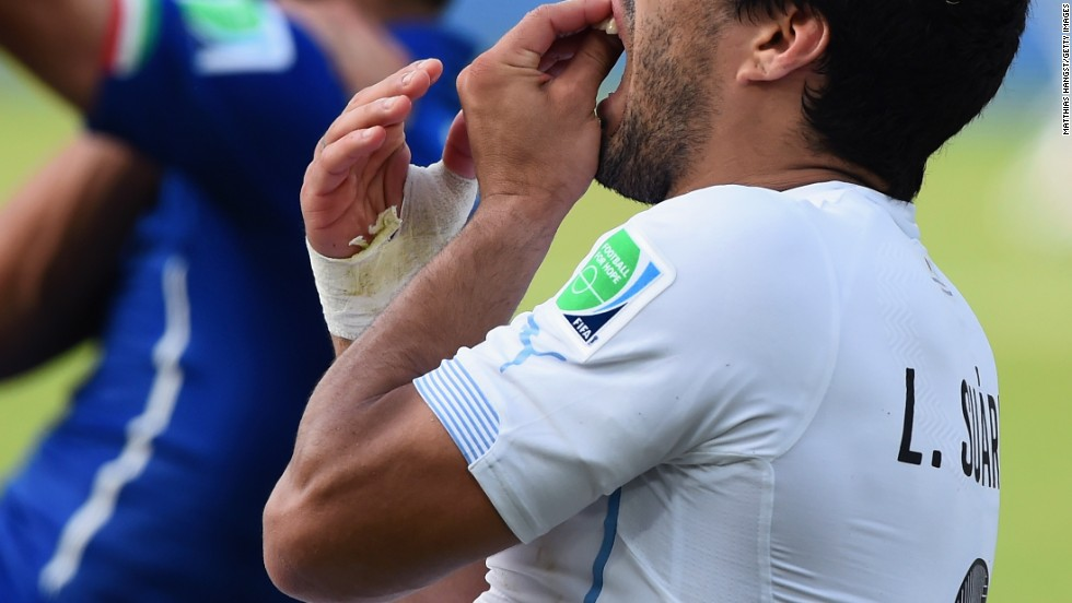 Suarez has previous on the biting front, having been banned for similar incidents in Holland and in England.