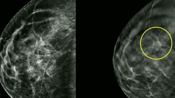 newday intv gupta 3d mammogram_00005406.jpg