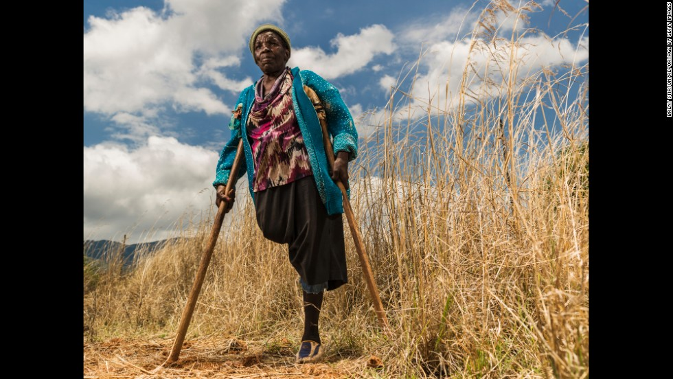 "Requina Jimu lost her leg in 1987 to a land mine laid by Rhodesian forces at the Mozambique-Zimbabwe border in the 1970s. Her husband was killed by a land mine a year later. ""Everything changed when I lost my leg,"" she said. ""Now I am a beggar."""
