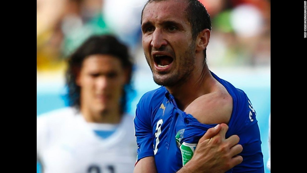 "Italy's Giorgio Chiellini shows his shoulder to match officials, claiming he was bitten by Uruguay's Luis Suarez during a World Cup match Tuesday, June 24, in Natal, Brazil. After reviewing the incident, FIFA <a href=""http://www.cnn.com/2014/06/26/sport/football/luis-suarez-banned-world-cup/"">suspended Suarez</a> for four months. The punishment is the most severe ever handed out at a World Cup for an offense committed on the field of play."