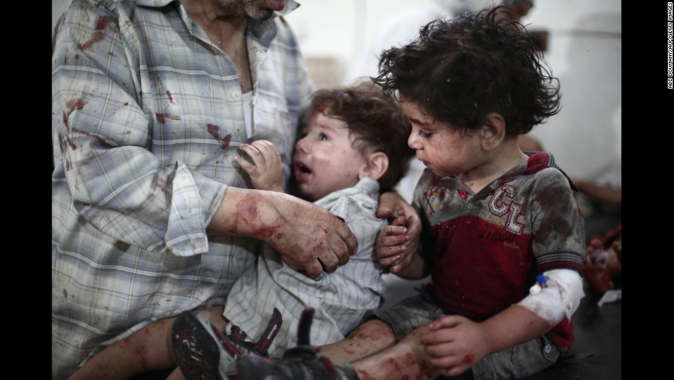 Injured children are treated at a makeshift hospital after a reported car bomb explosion Saturday, June 28, in Douma, Syria. The country's civil war is now in its third year.