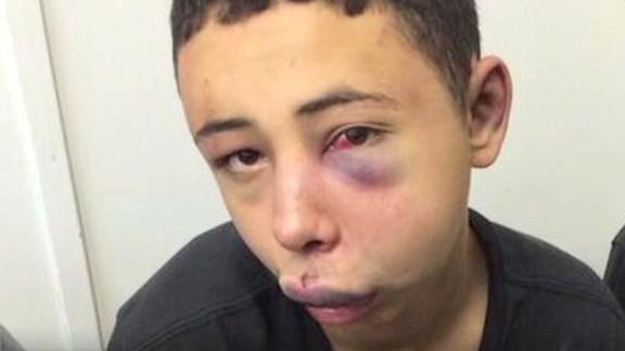 nr dnt magnay florida teen beaten arrest_00003321.jpg