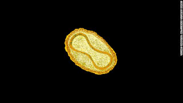 CDC: Smallpox found in NIH storage room is alive