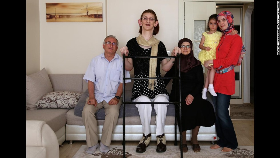 Rumeysa Gelgi, second from left, poses with her family at their home in Karabuk, Turkey, on Wednesday, July 9. Gelgi, a 17-year-old with a rare disorder called Weaver syndrome, was named the world's tallest girl by the Guinness Book of World Records. She is just over 7 feet tall.