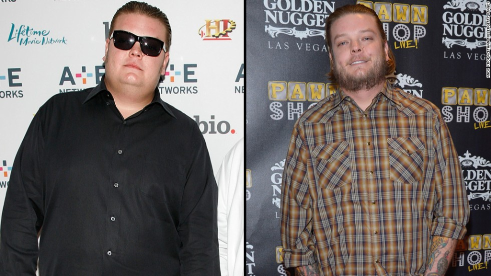 "Corey Harrison from the hit reality show ""Pawn Stars"" once tipped the scales at more than 400 pounds. He<a href=""http://www.people.com/article/pawn-stars-corey-harrison-amazing-weight-loss"" target=""_blank""> told People magazine</a> he shed weight through surgery and exercise."