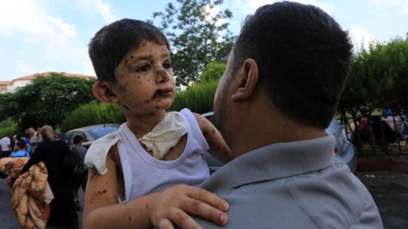 A Palestinian boy injured during an Israeli airstrike is taken to the hospital by his father in Gaza City on July 20.