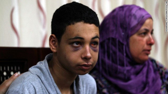 Beating victim Tariq Abu Khdeir is shown with the mother of  Mohammed Abu Khedair in the West Bank town of Ramallah.