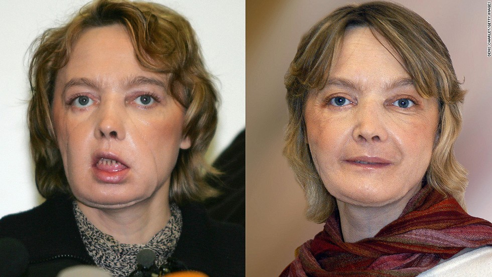 In 2005, Frenchwoman Isabelle Dinoire, 39, was the first person to undergo a partial face transplant after being mauled by her dog. She is pictured a few months after her surgery and a year later.