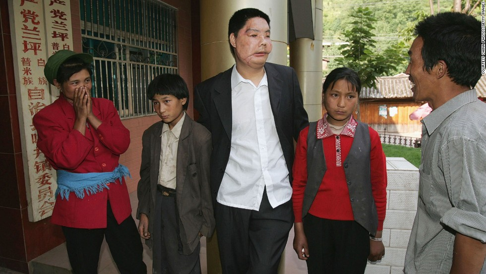 Li Guoxing, China's first partial face transplant patient, stands with his family in 2006. He died in 2008.
