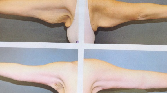 A surgeon removed the excess skin left behind on Miller's arms following her weight loss.