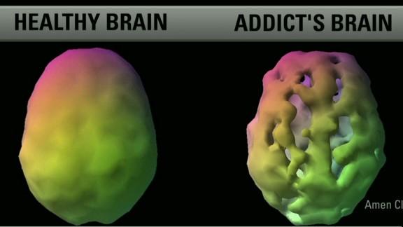 exp erin intv amen robin williams addition brain scans_00002001.jpg