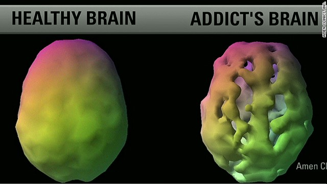 A healthy brain and an addict's brain will look different using a brain scan. A healthy brain will show even blood flow and activity, an addicts brain would show more problems on a scan.