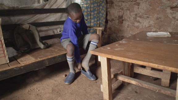 According to Kenya's Ministry of Health, 1.4 million people are infested with jiggers -- 80% of them school-aged children. Maasai Treads hopes to bring that number down through their donation of sandals.