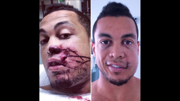 """Giancarlo Stanton, an All-Star baseball player with the Miami Marlins, posted photos of himself after a pitch hit him in the face Thursday, September 11, in Milwaukee. """"Making huge progress!!"""" he wrote on Instagram. """"Want to thank everyone who has played a part in my recovery process. Your kind messages, thoughts & prayers have meant the world to me."""""""