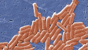 Antibiotic resistance: An old problem with new ramifications