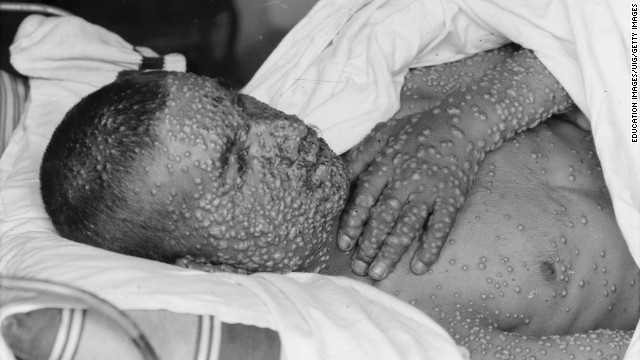 Smallpox Victim Between 1898 And 1946. (Photo by Education Images/UIG via Getty Images)