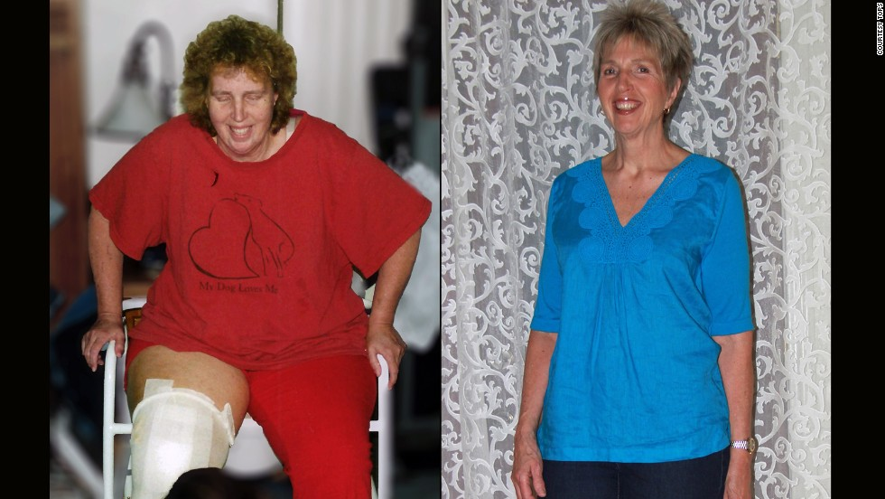 "Each year <a href=""http://www.tops.org/"" target=""_blank"">TOPS</a>, a nonprofit weight loss support organization, recognizes members who followed the club's slogan of ""Taking Pounds Off Sensibly."" Victoria Brazzle from Pahrump, Nevada, lost 101 pounds. Click through the gallery to see more success stories."
