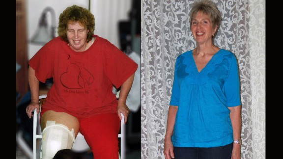 "Each year TOPS, a nonprofit weight loss support organization, recognizes members who followed the club's slogan of ""Taking Pounds Off Sensibly."" Victoria Brazzle from Pahrump, Nevada, lost 101 pounds. Click through the gallery to see more success stories."