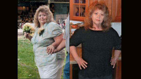 Paula Hicks from Iberia, Missouri, dropped 107 pounds.