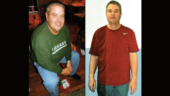 Patrick Davis from Granite City, Illinois, lost 91 pounds.