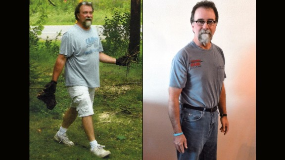 Matthew Matter from Buffalo, Minnesota, dropped 54 pounds.