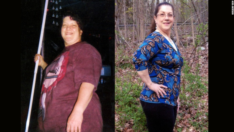 Laury Mathews from Bolton, Connecticut, lost 70 pounds.