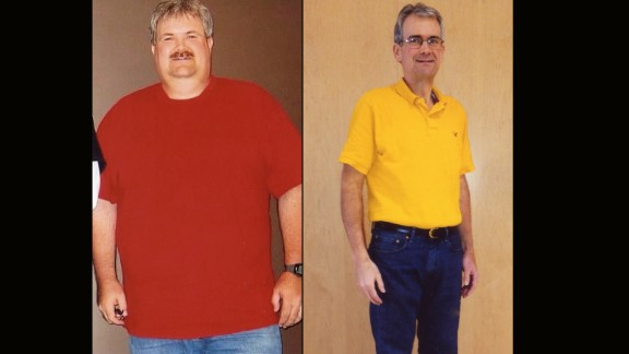 Dexter Russelburg from Evansville, Indiana, lost 111 pounds.
