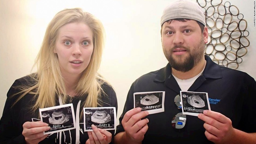The Gardners started a Facebook page after people started sharing pictures from the ultrasound all over the Internet.