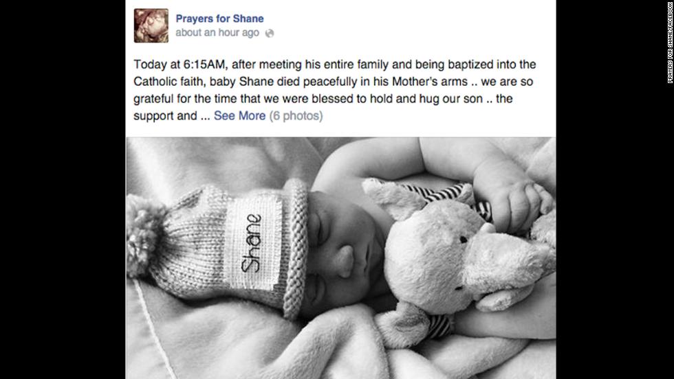 Infant Loss Awareness Day: Bereavement photos - CNN