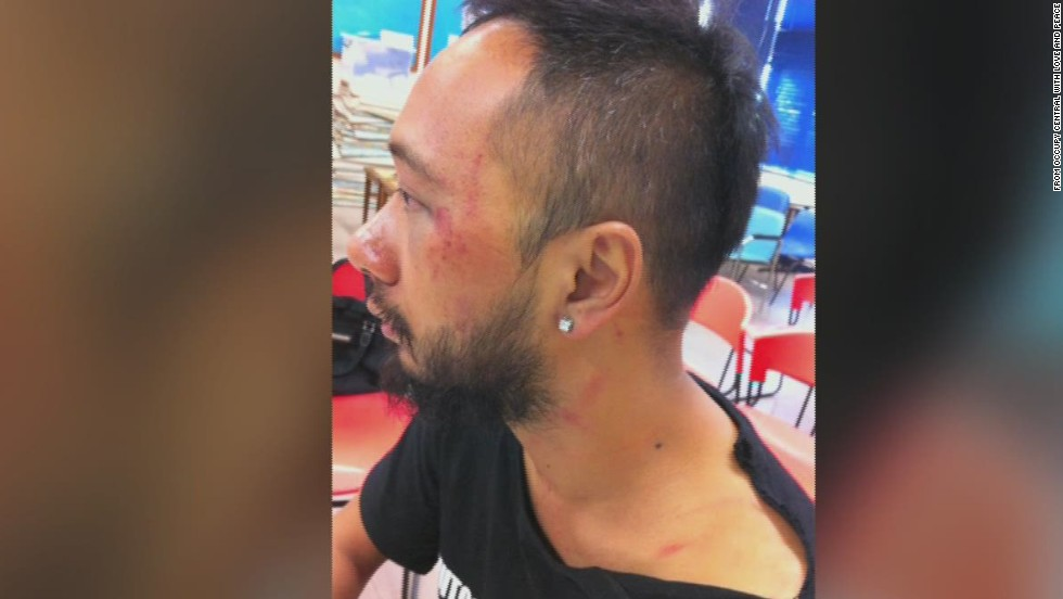 Activist Ken Tsang's 2014 beating by Hong Kong police during the city's pro-democracy protests was captured on video and raised questions about the conduct of the force