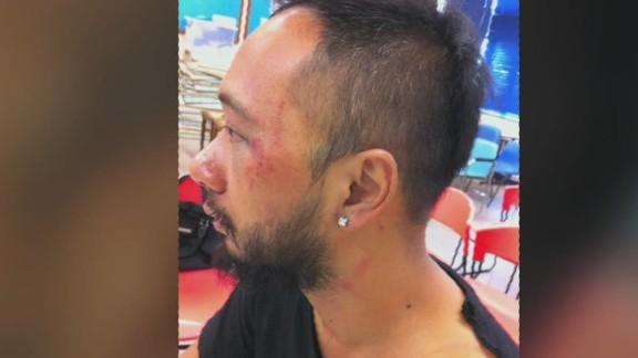 pkg tank hong kong protester alleged beaten_00001207.jpg