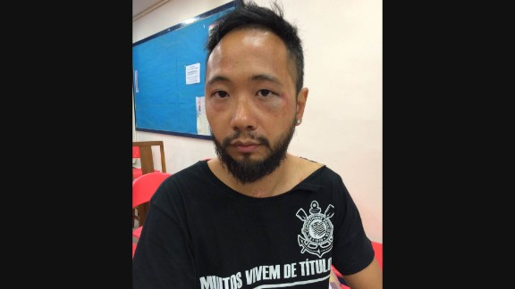 Photos show bruising on Ken Tsang's face.