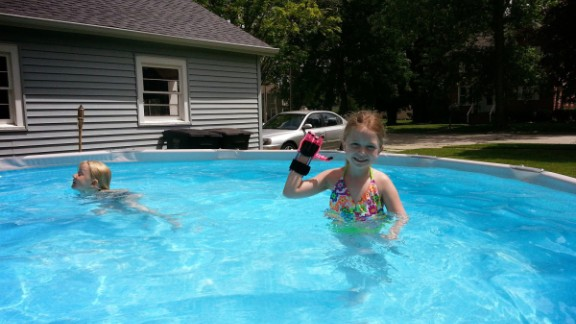 Shea plays in a swimming pool with another one of her hands. 3-D printed hands are light, cheap and waterproof.