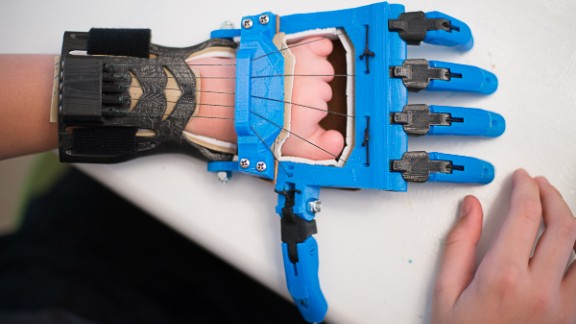 The Talon hand is a popular model designed by a high school French teacher, Peter Binkley, for his son, Peregrine Hawthorne. Both of them are major design and testing contributors to the e-NABLE community.