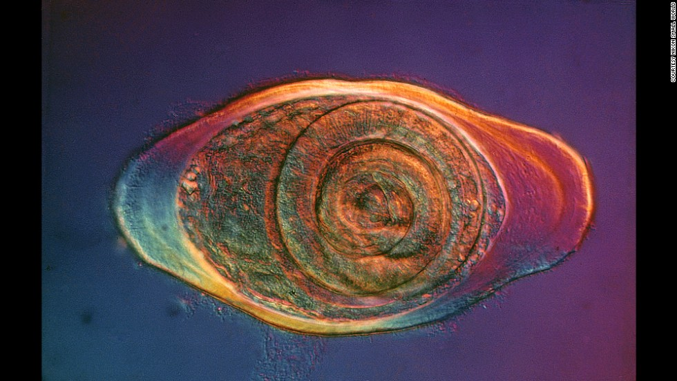 Encysted parasitic roundworm (trichinella spirals)