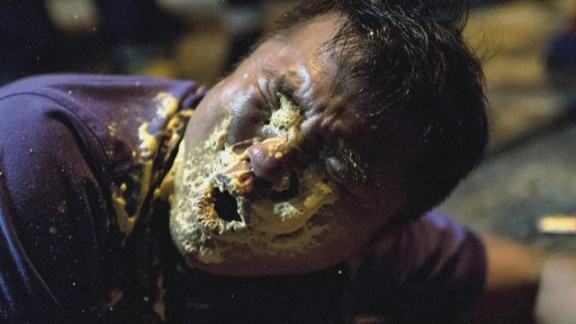 A journalist covering the Hong Kong protests is hit in the face with pepper spray.