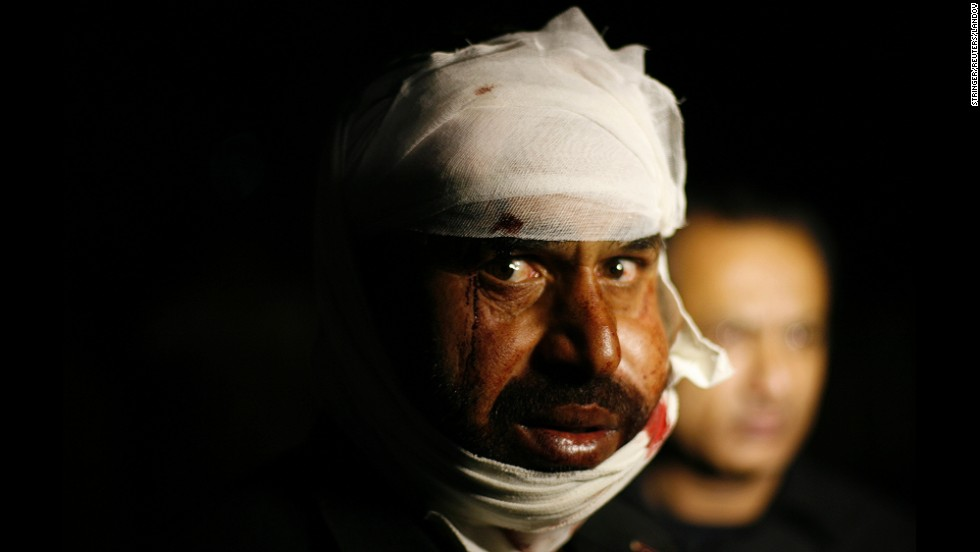 A Pakistani man wounded in a suicide bomb attack receives first aid at a hospital near Lahore on Sunday, November 2. At least 60 people were killed Sunday in a suicide attack on the Pakistani-Indian border, police said.