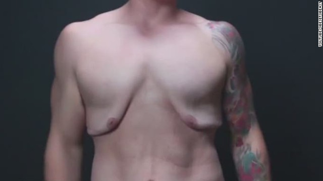 Man Shows Loose Skin After Weight Loss Cnn Video