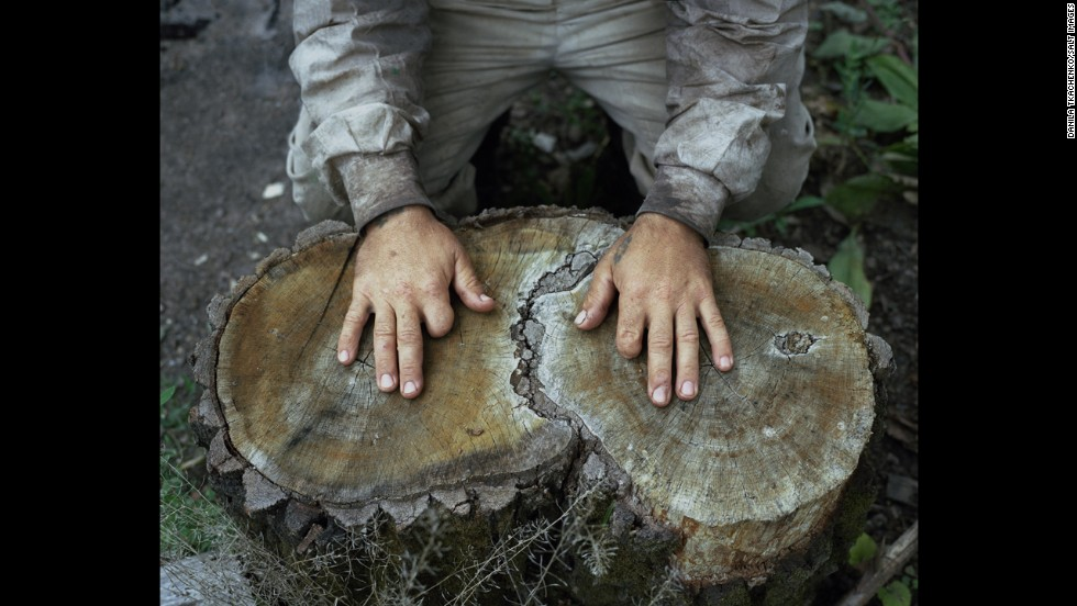A hermit's hands show two missing fingers.