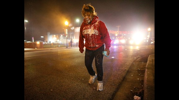 A woman treats her face for possible tear gas exposure on November 24.