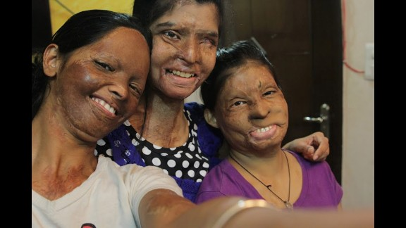 """Three acid attack victims, Laxmi, Rupa and Ritu, take a selfie Friday, June 20, for the <a href=""""https://www.facebook.com/photo.php?fbid=166427150199113&set=a"""" target=""""_blank"""" target=""""_blank"""">Stop Acid Attacks campaign:</a> """"Together we can eliminate this social evil. ... Help us succeed in our fight to end #AcidViolence in India."""""""
