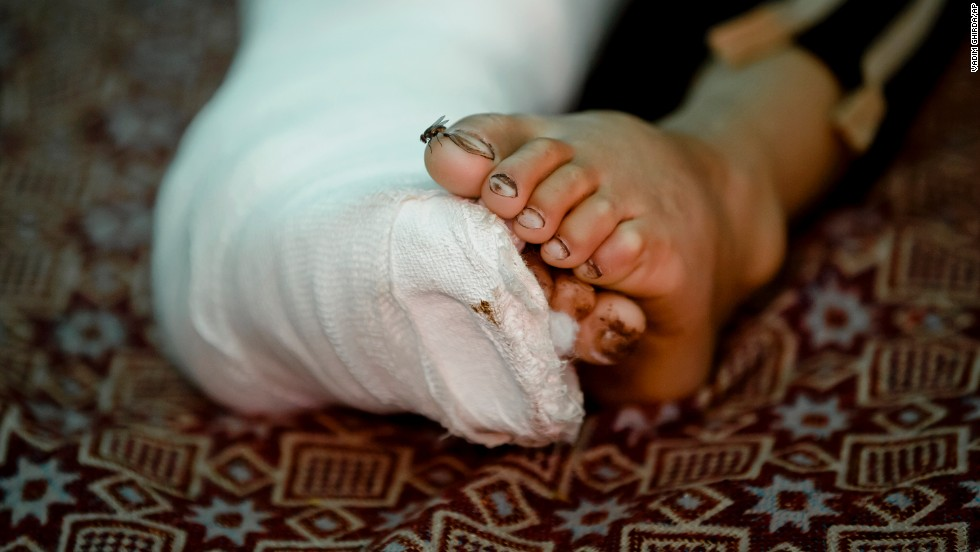A fly lands on the toe of 8-year-old Mahmut Munir, a Syrian Kurdish refugee boy from Kobani, inside a tent in Suruc on November 19. The boy was reportedly injured in a mortar attack by ISIS militants.